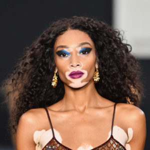 Winnie Harlow - Photo by Pascal Le Segretain/Getty Images for L'Oreal Paris