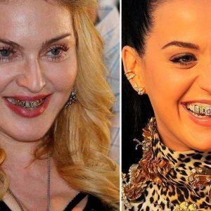 gioielli dentali