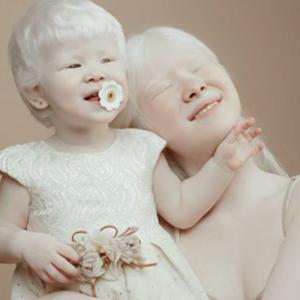 Asel Kalaganova Instagram: due sorelle albine fanno impazzire il web